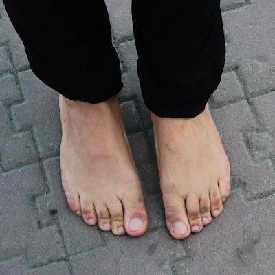 На ступнях Оксаны отчетливо видны следы обуви: все пальцы, кроме большого, ощутимо подогнуты вниз и с трудом распрямляются...