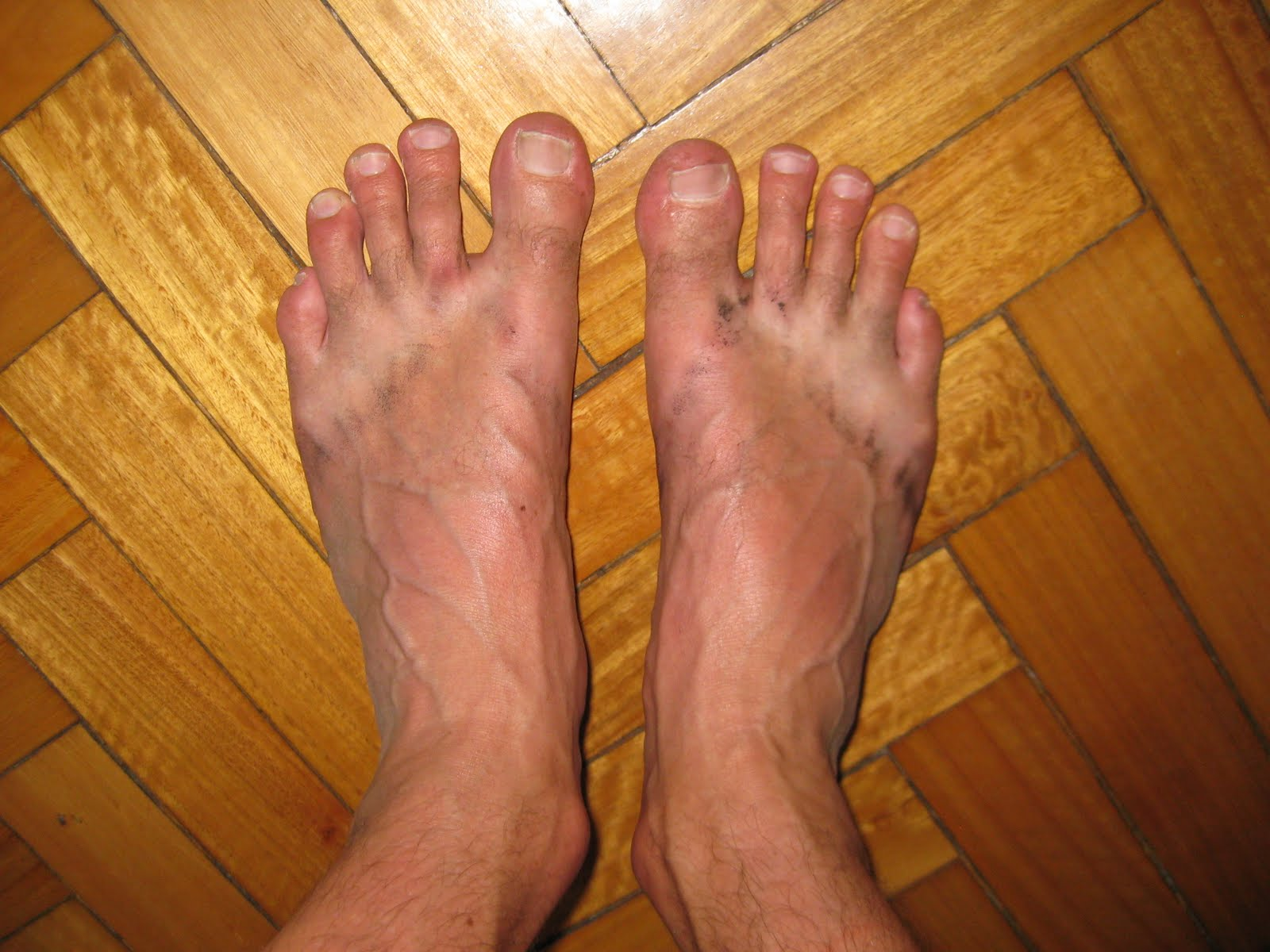 Ugly feet, after a days walking