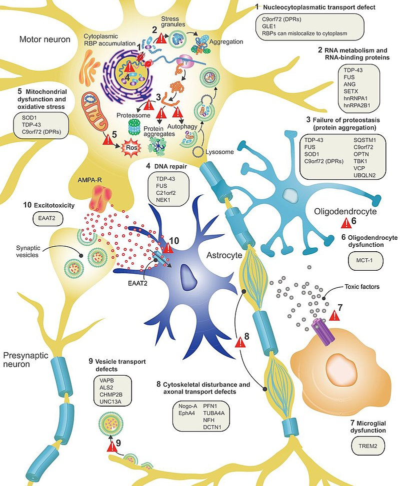 is als genetic: modelling of various factors linked with als
