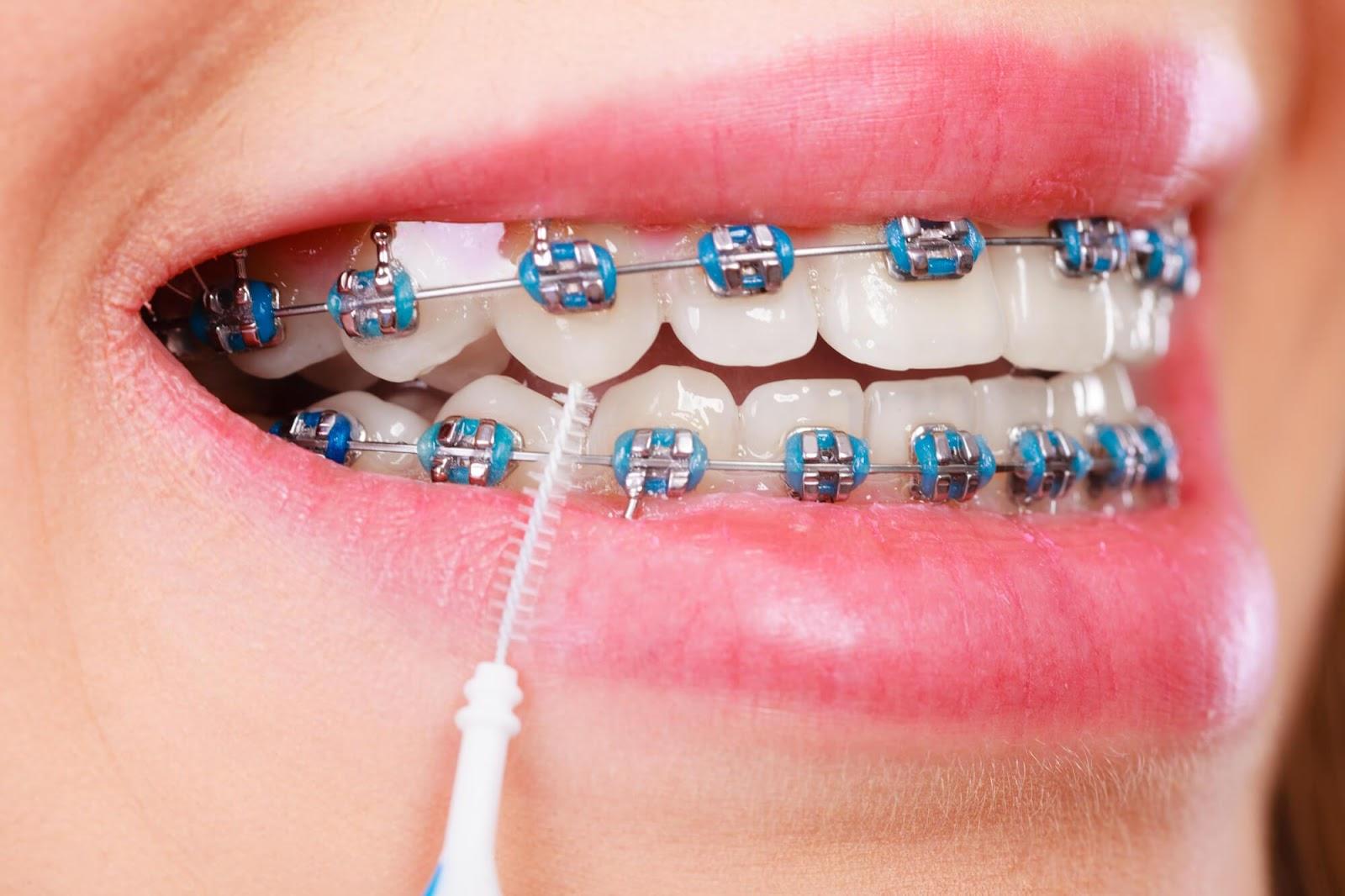 8 dicas de higiene para quem utiliza aparelho ortodôntico fixo - Blog da  Odonto Ágape | Clínica de Implante Dentário & Ortodontia