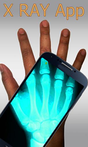 X-ray Scanner Prank 2015