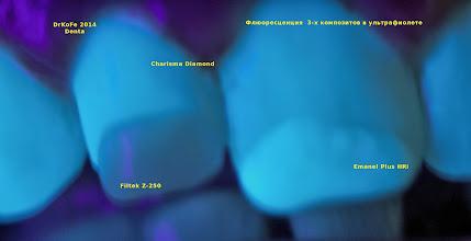 Photo: Charisma Diamond (Heraeus Kulzer). Filtek Z-250(3M-ESPE), Enamel Plus HRi (Micerium)