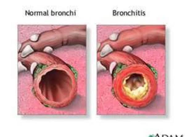 Bronchitis Soothing Syrup Recipe