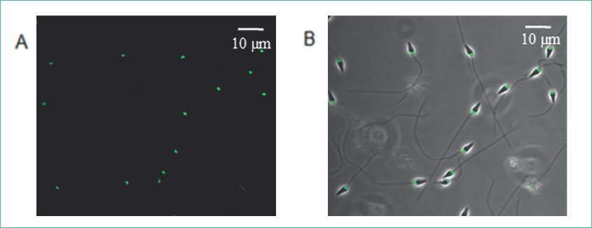 La rodamina-123 marca la mitocondria de los espermatozoides de S. purpuratus. Espermatozoides marcados con 10 μM de Rodamina-123.