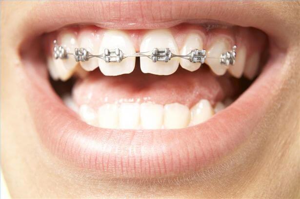Bảng giá niềng răng thưa bao nhiêu tiền là chuẩn nhất hiện nay?