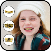 Gold Teeth Photo Editor