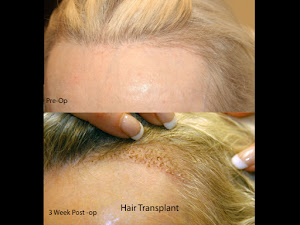 Hair Restoration Women