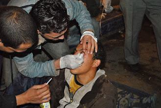 Photo: Tear drops are given to this young man to combat the symptoms of tear gas..