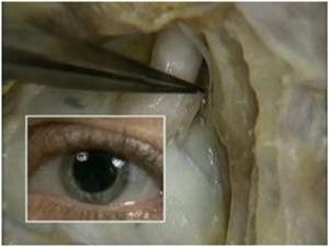 oculo12