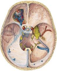 cranio base2