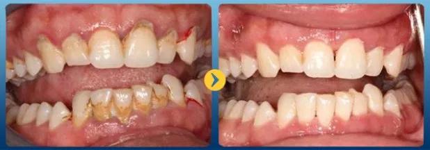 Cạo vôi răng có hết hôi miệng không - Nha khoa Quốc tế Bally 1