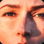 Get Rid Dark Spot On Skin 1.1