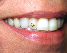 Bijuterie Dentara din Aur