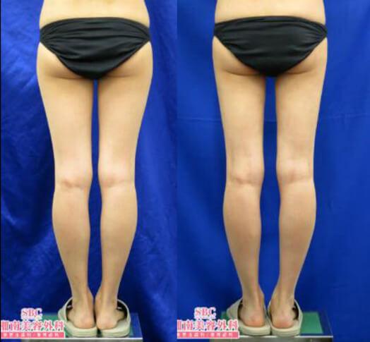 ライポマティック脂肪吸引(大腿+臀部+膝)術後3ヶ月