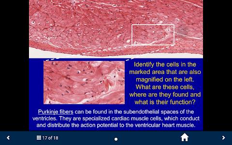 Cardiovascular & Lymph. System screenshot 13