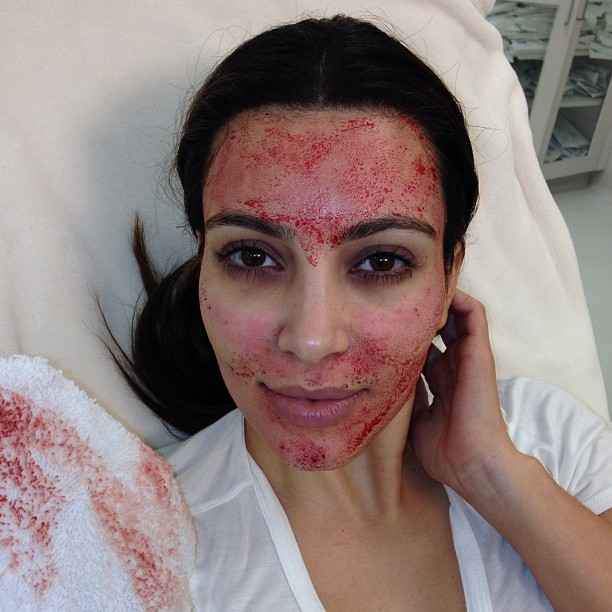 Kim Kardashian after getting a 'vampire facial'.