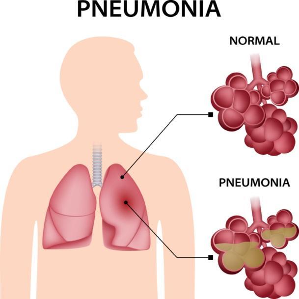 Pneumonia   Private Pneumonia Treatment   Respiratory London