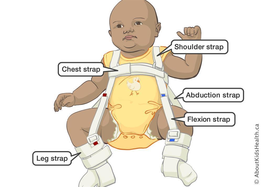 baby in a pavlik harness