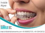 Best Invisible Aligner Treatment Is Possible in Faridabad?