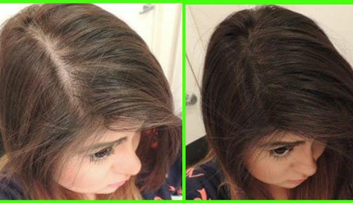 Hair Growth Tips ss1