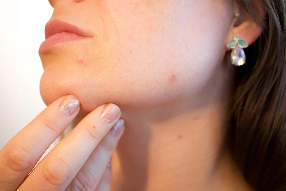 4 Ways To Combat Acne