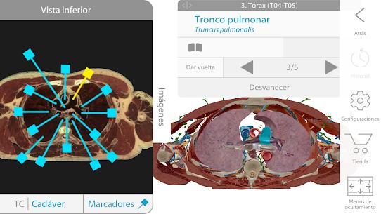 Atlas de anatomía humana 2018 APK 5