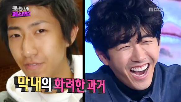 kwanghee plastic surgery 1