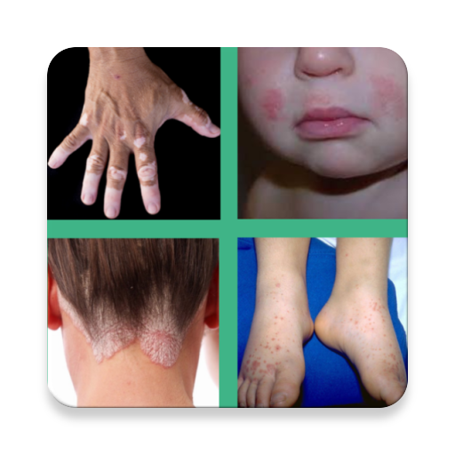 All Skin Diseases and Treatments - Skin care guide