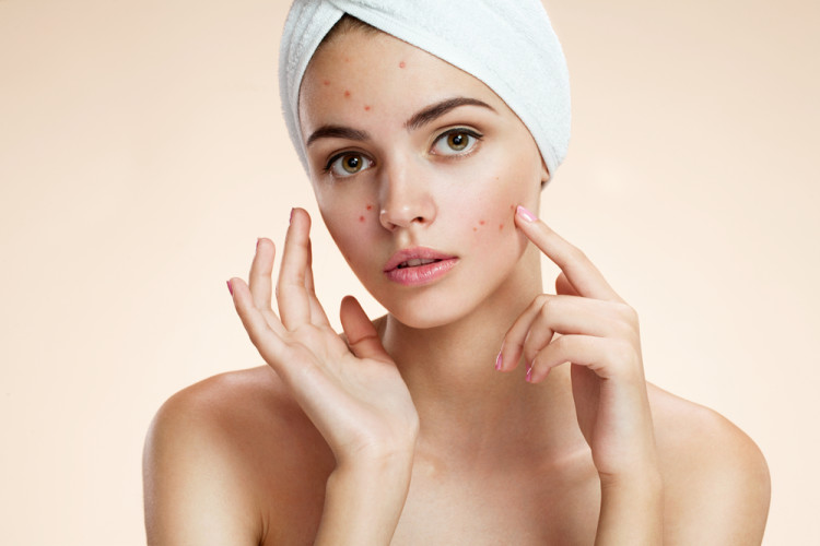 顔のニキビ跡を消す方法