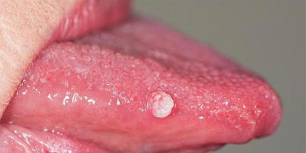 lưỡi bị nổi hột đỏ đau rát