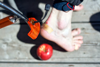 Photo: Ice axe, apple and a blister