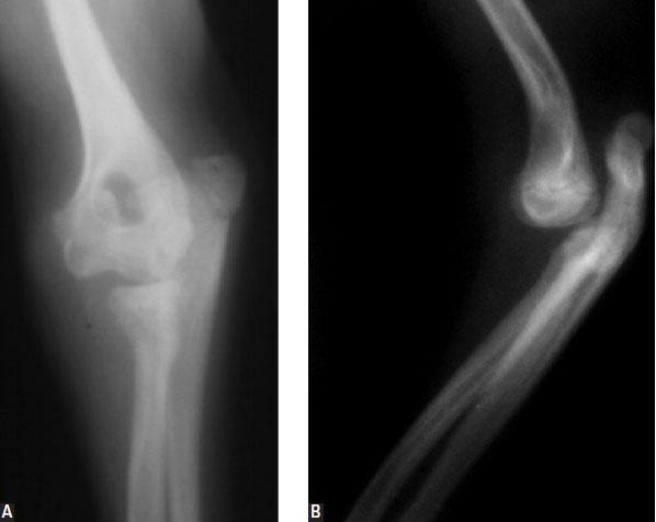 Congenital elbow luxation
