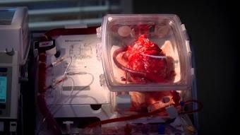 Das Herz im Kasten