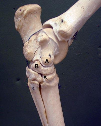 El sitio de centesis para la articulación intertarsiana distal es localizado identificando la eminencia medial del talo que es fácilmente palpable (A)