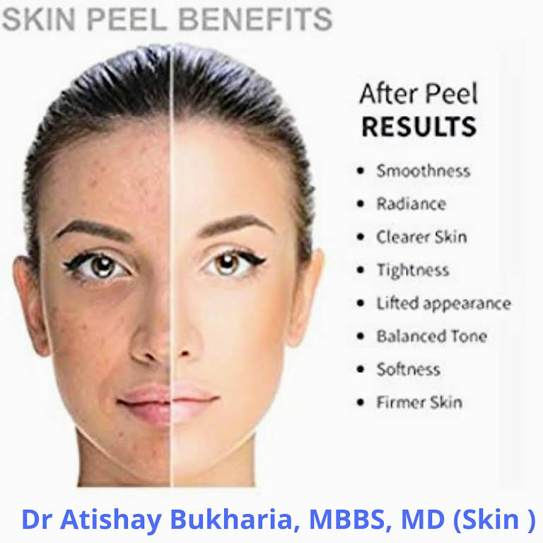Dr  Atishay Bukharia, MBBS, MD(Skin) Dermatologist and Cosmetologist