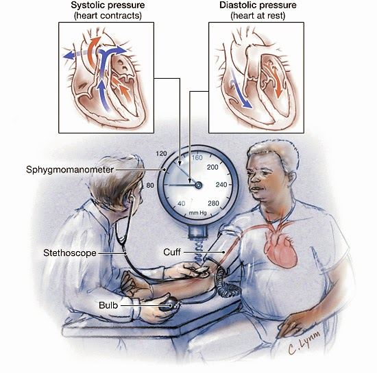 Super Lutein Untuk Pengobatan Hipertensi