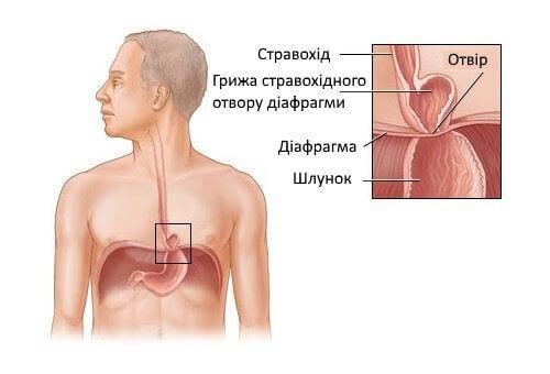Лапароскопічне лікування стравохідної кили