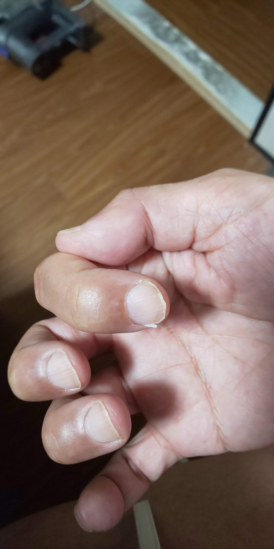 20年もの間 悩まされてきた「爪の縦割れ」を素人の荒療治で根絶できないかやってみました。