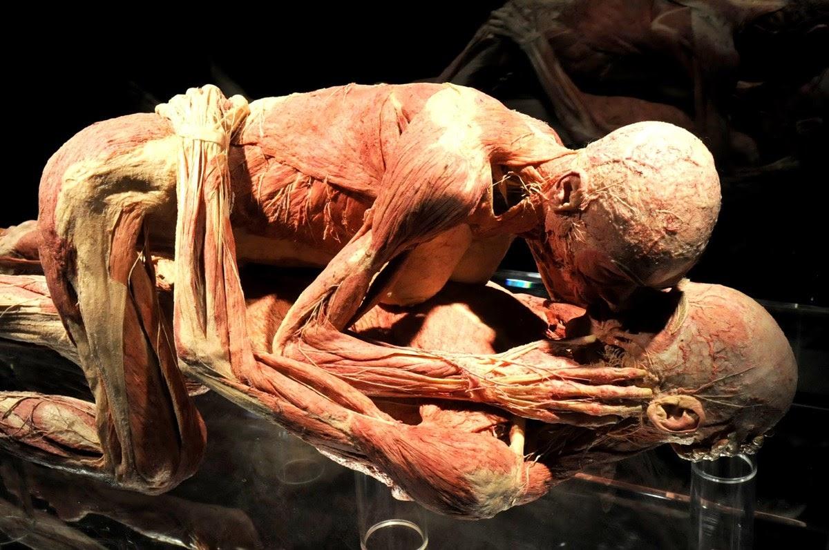 Plastinarium, a morte vista em plastinação