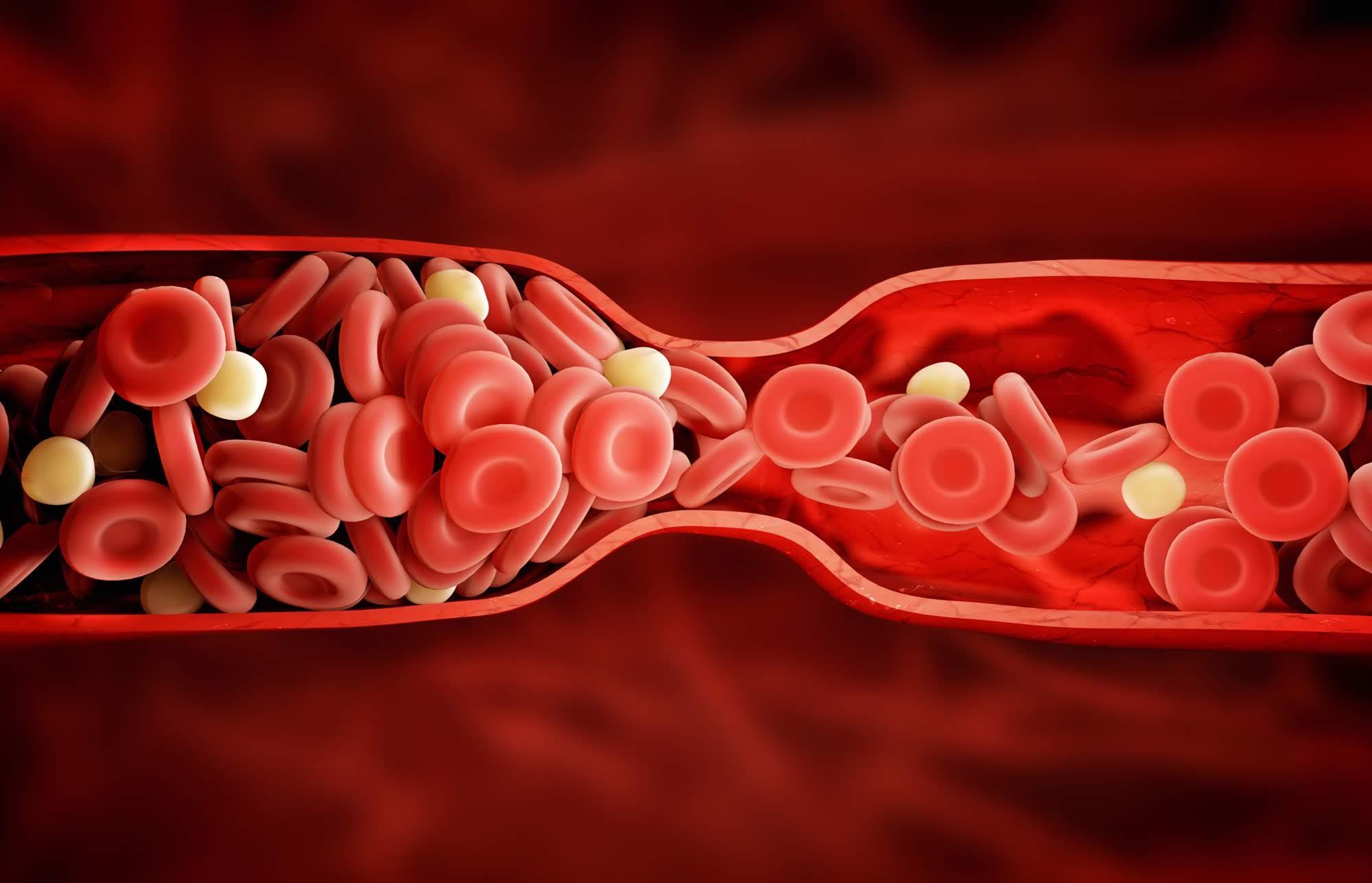 Yến mạch giúp bảo vệ hệ tim mạch Yến mạch có tốt không ?