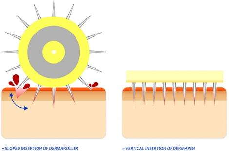 Cơ chế hoạt động của phương pháp trị sẹo lõm lăn kim