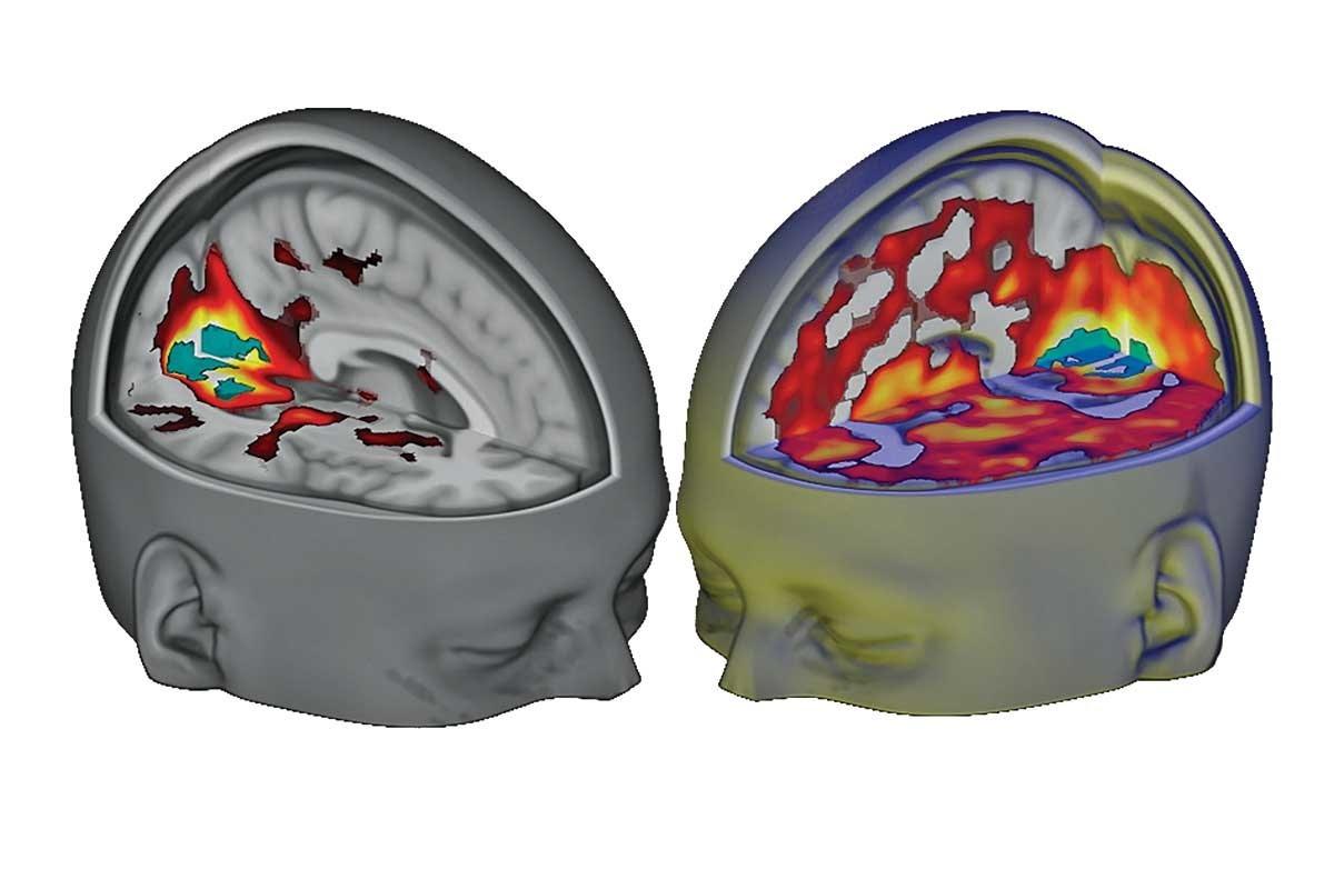 Cerebro con y sin LSD