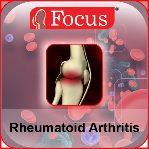 arthrosis osteoarthrosis kezelés)