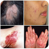 All Skin Diseases and Treatment- A to Z