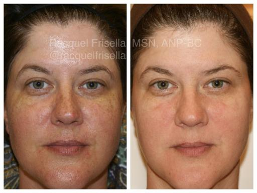 Intense Pulsed Light therapy before and after