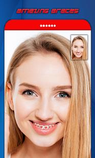 Brace Selfie 621: Brace Photo Booth - náhled
