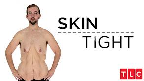 Skin Tight thumbnail