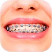 Braces Booth - Funny Stickers