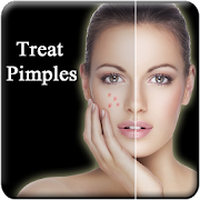 Pimple Remove in 7 Days