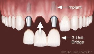 Dental Implants Replace Multiple Teeth New Haven Dental How Much Do Implants Cost?